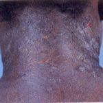 eczema of neck